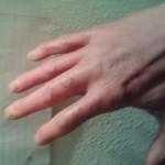 Wesrtern diamondback bit +7 days. No treatment.